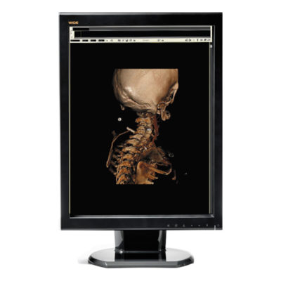 RADIOLOGY SELF-CALIBRATING DISPLAYS WAREHOUSE